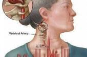 علامات جلطة المخ