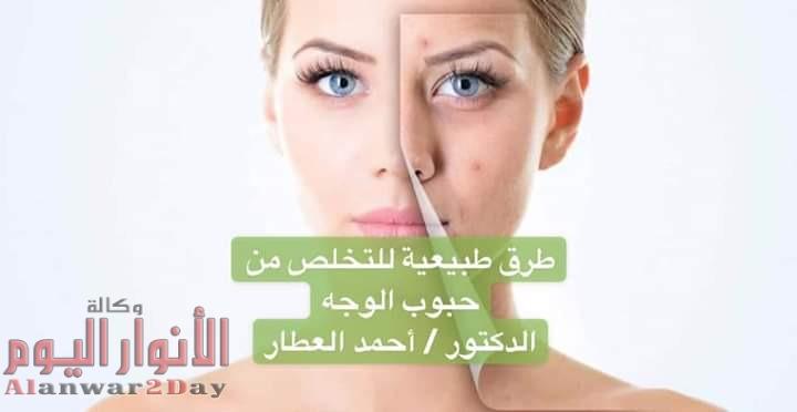 طرق طبيعية للتخلص من حبوب الوجه مع الدكتور / أحمد العطار